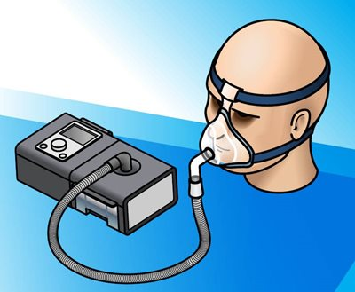 CPAP with humidity image